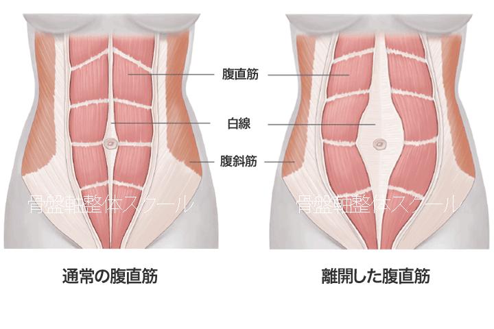 腹直筋離開と骨盤軸整体